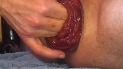 My prolapsed hole
